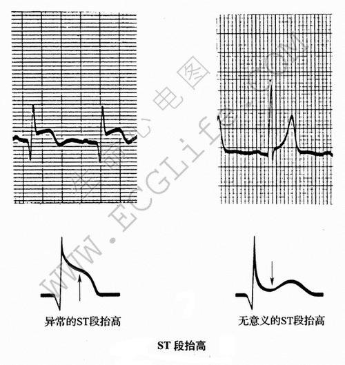 波的形态:ST段及ST段抬高与下降图解