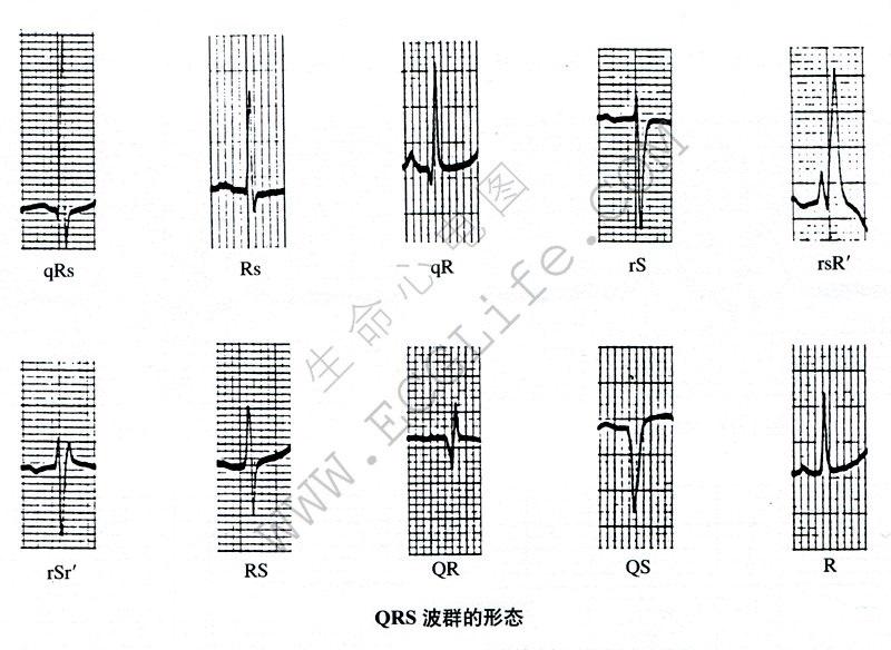 波的形态:QRS波群代表的意义
