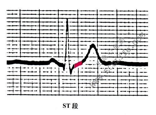 心电图ST段
