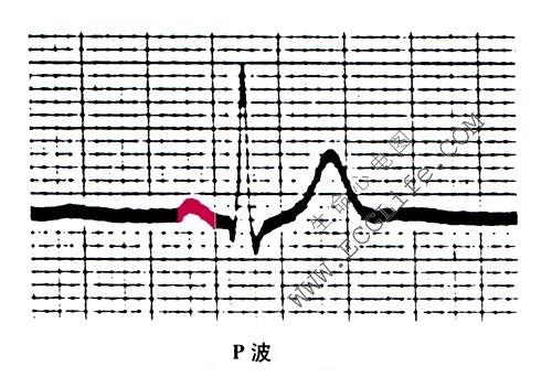 心电图波段的名称和意义