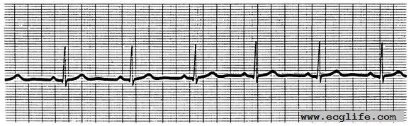什么是心电图?