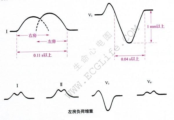 左房负荷增重心电图