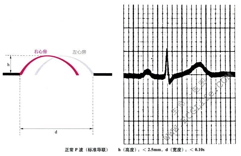 P波的形成