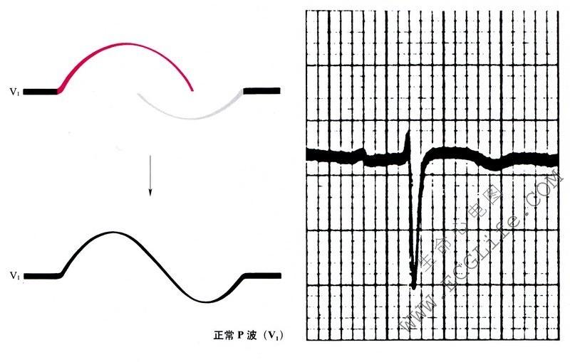 正常心电图P波