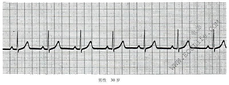 皮肤病图片及名称_正常窦性心律的诊断依据 - 心电图学 - 天山医学院