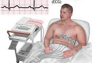 用心电图可以对心脏作出的诊断
