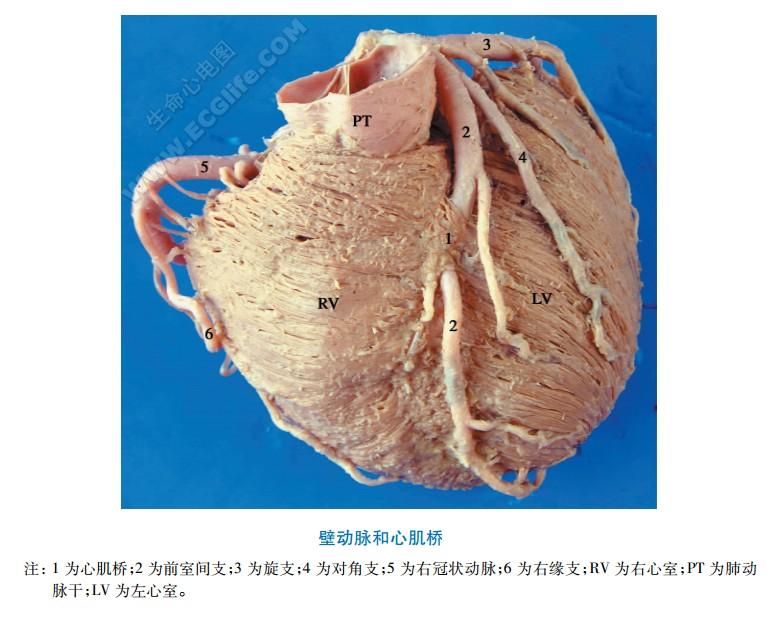 心脏壁动脉(穿过心肌桥的动脉)
