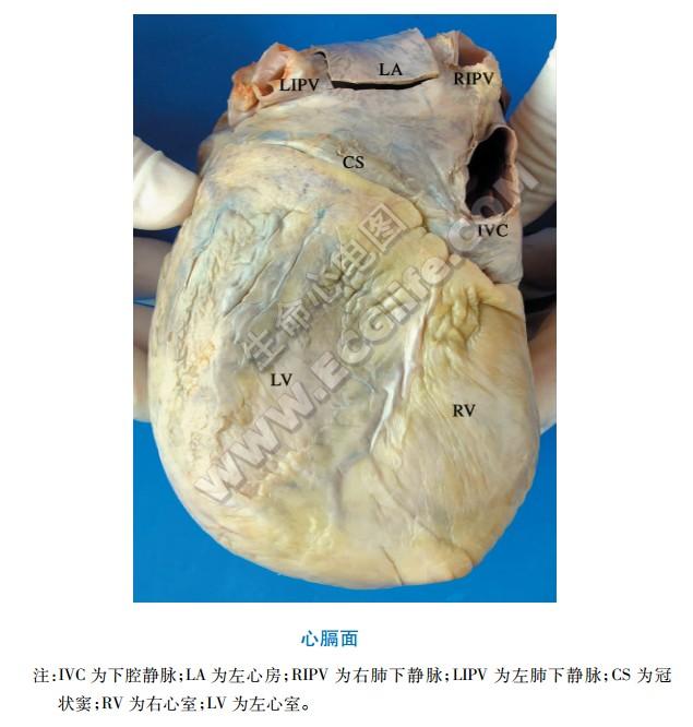 心膈面解剖图