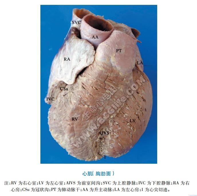 心肌解剖图