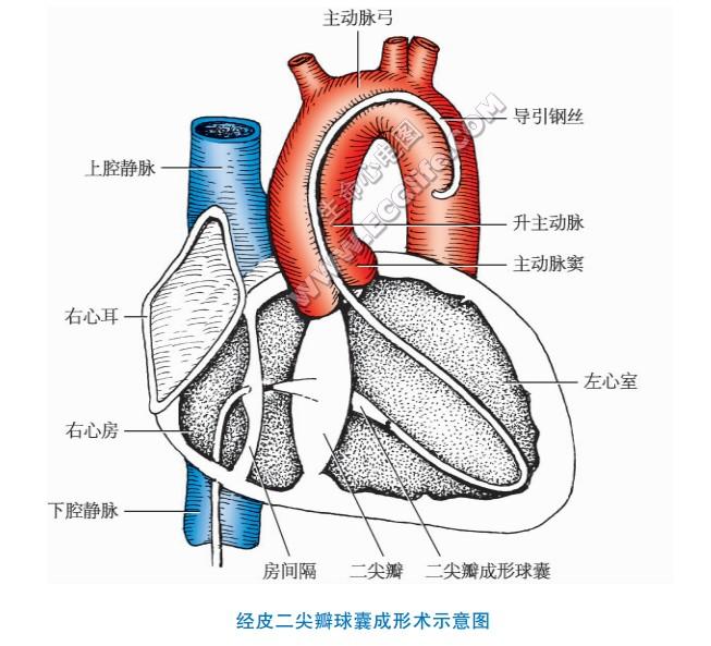 经皮瓣膜球囊成形术