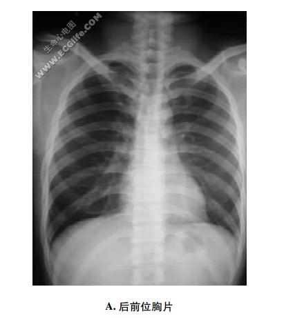 胸片心影解剖:X线摄片检查