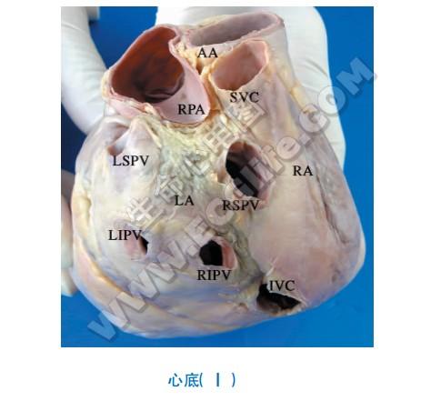心底解剖图1