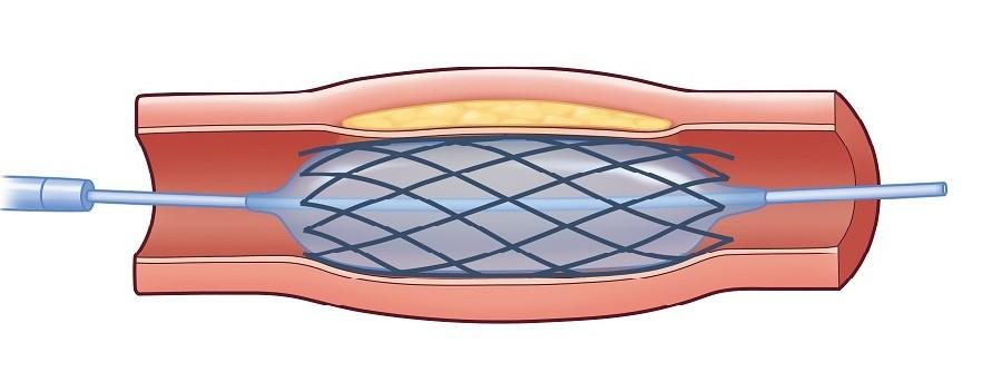 经皮冠状动脉介入治疗