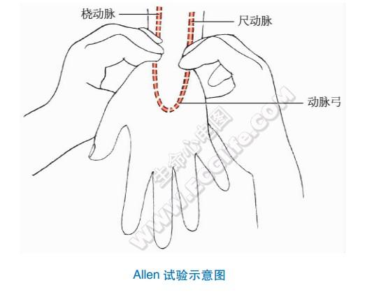 肱动脉和桡动脉穿刺法