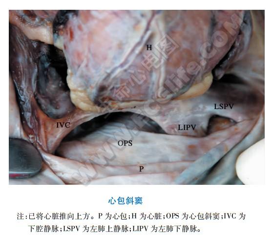 心包斜窦解剖图