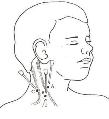 颈内静脉穿刺法