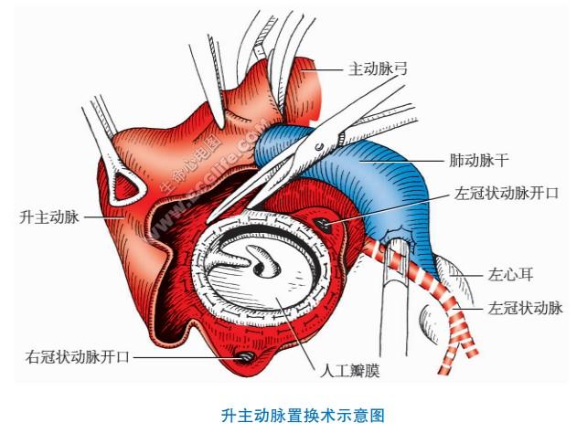 各主动脉瘤与手术治疗
