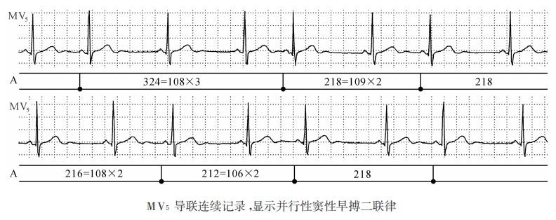 窦性心律不齐 早搏_【图】窦性二联律的类型及心电图特征 - 心电图学 - 天山医学院