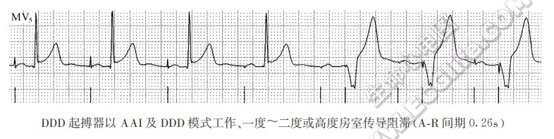 DDD心脏起搏器(心房、心室双腔起搏)