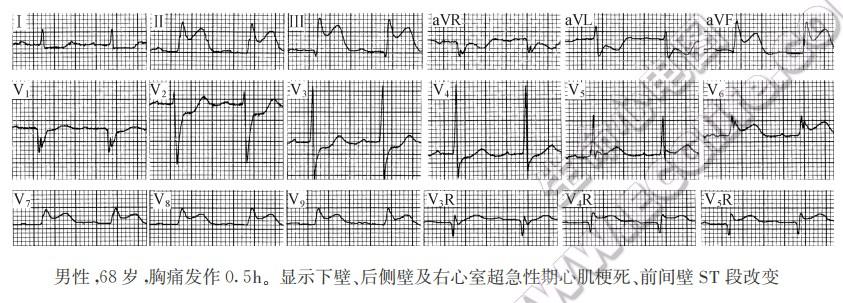 心肌梗死的心电图演变规律及分期
