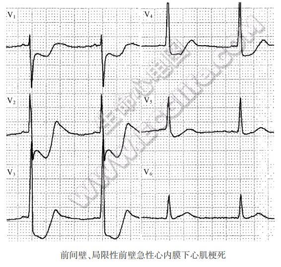 心内膜下心肌梗死的心电图表现