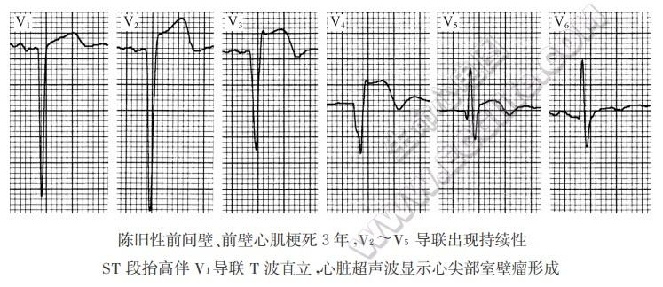 室壁瘤的形成与心电图表现