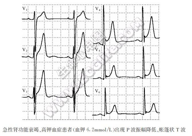 高血钾对心肌细胞的影响及心电图表现