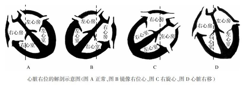 右位心(镜像右位心、右旋心)的心电图表现