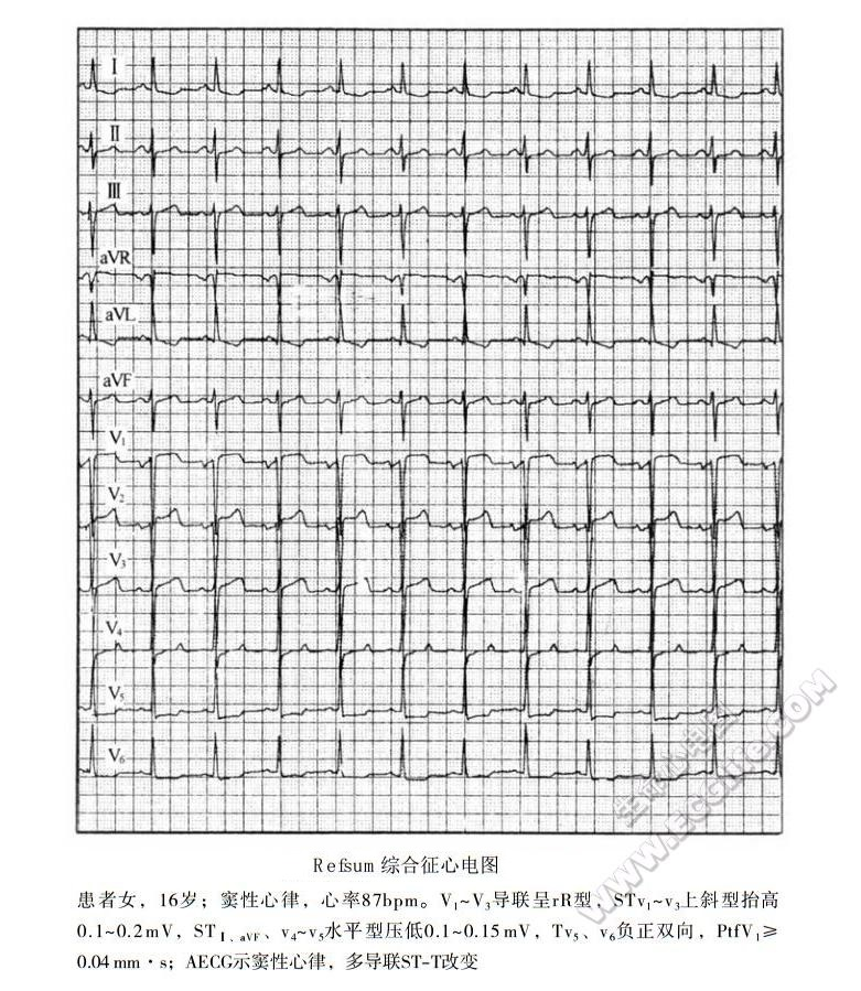 Refsum综合征(雷夫叙姆病、共济失调-多发性神经炎综合征)