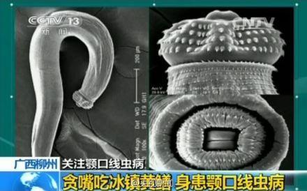 颚口线虫病:病因、症