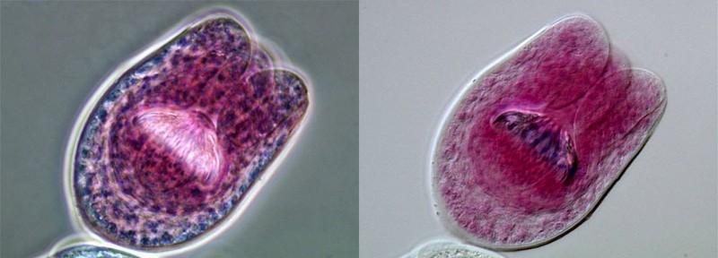 NIKON 相差以及DIC   绦虫细粒棘球蚴包虫病