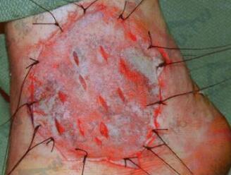 皮肤移植:皮片切取与植皮术