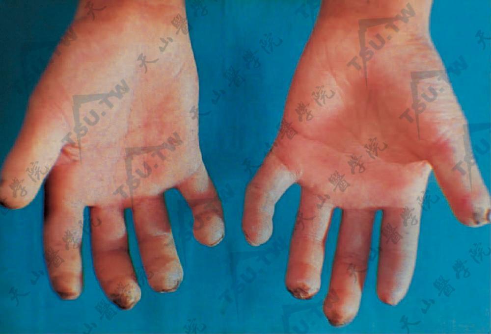 支原体感染的症状_雷诺病(雷诺现象)病因、症状、诊断治疗 - 皮肤病学 - 天山医学院