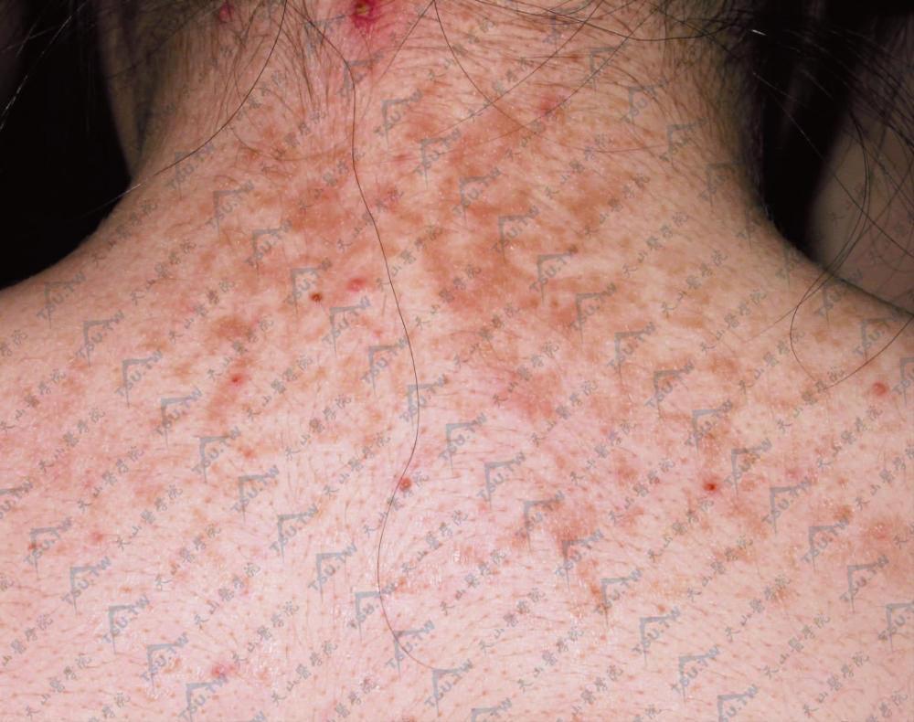 痒疹 妊娠 原因 性 かゆすぎる妊娠性痒疹!我慢できない時のかゆみ対策