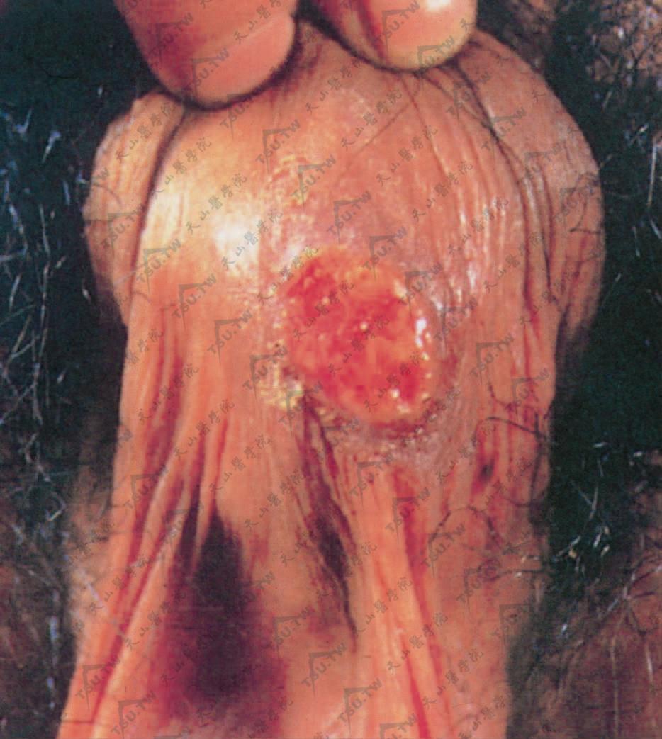 梅毒(硬下疳,阴囊)