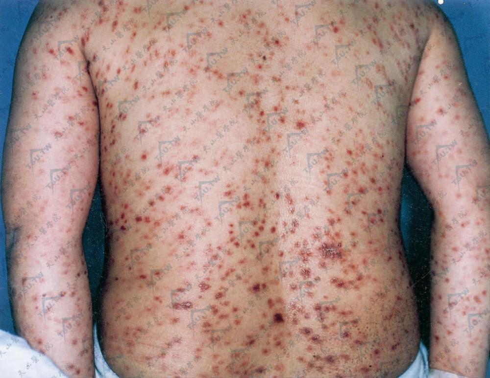 躯干部的梅毒斑疹