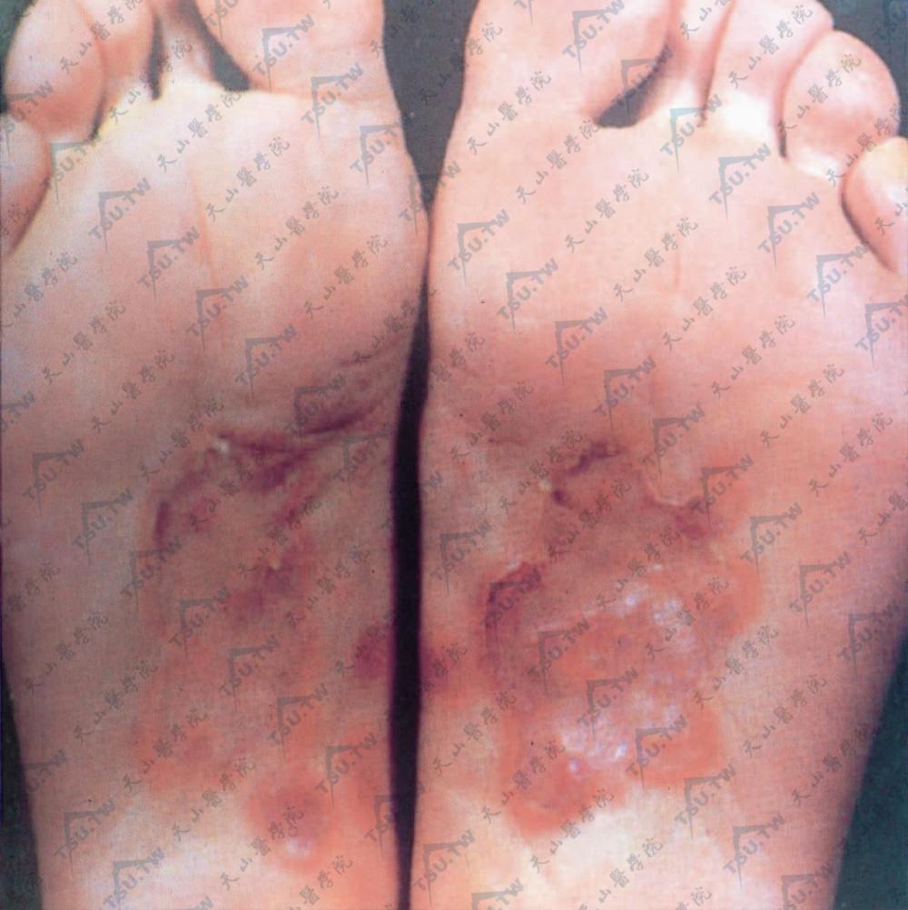 梅毒(二期,足跖)足跖部散在圆形或椭圆形红斑,于足弓部成群集状