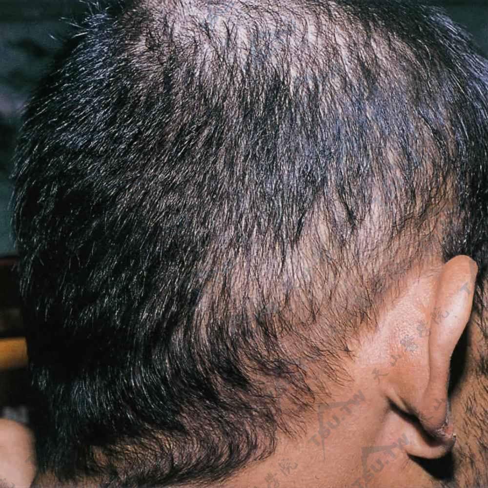 二期梅毒虫蚀状脱发