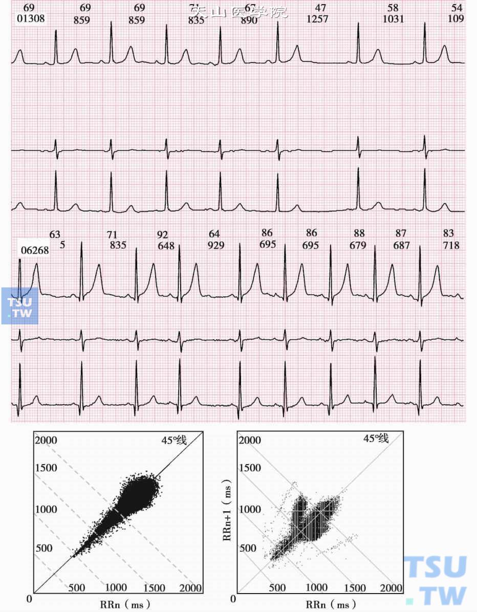窦性心律不齐 早搏_【图】复杂心律失常的心电散点图分析举例 - 心电图学 - 天山医学院