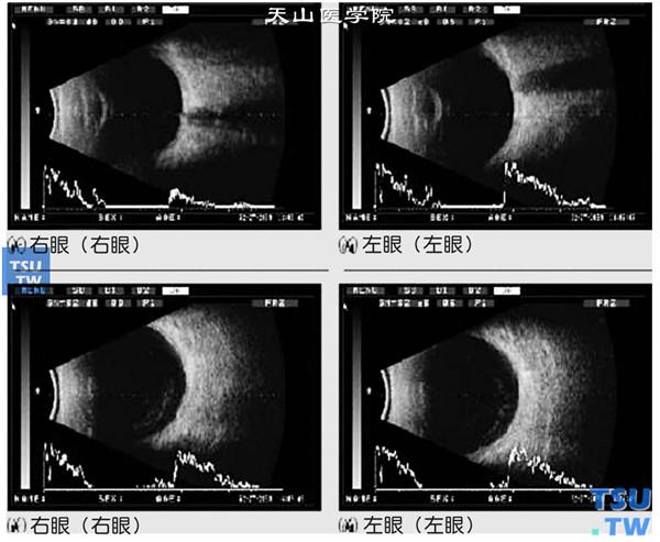 眼玻璃体混浊_【图】移植物抗宿主病(graft-versus-host disease,GVHD) - 眼科学 ...